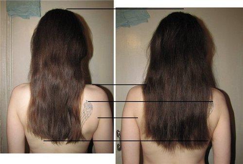 Кислота для роста волос название
