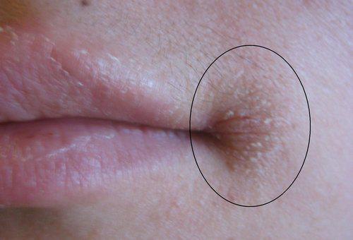 Заеды в уголках рта: причины и лечение трещинок губ