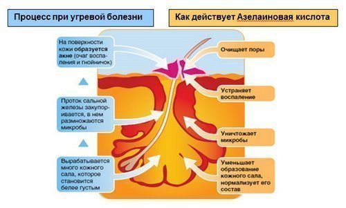 azelainovuyu-kisloti-kosmetologii-3
