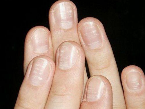 Дешевое средства от грибка ногтей