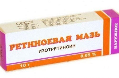 retinoevaya_maz_dlya_lica_ot_morschin_i_pryschej-1