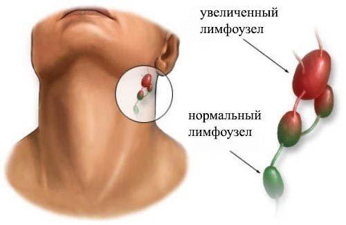 Симптомы воспаления лимфоузлов на шее