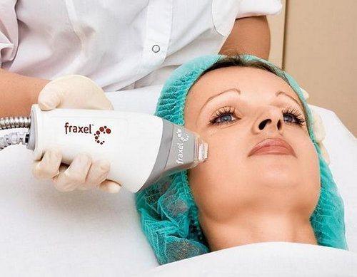 fraksel_procedura_lazernogo_frakcionnogo_termoliza-1