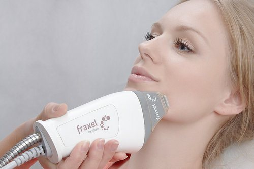fraksel_procedura_lazernogo_frakcionnogo_termoliza-3