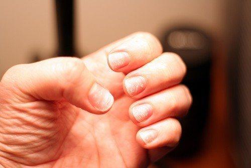 Расслоение ногтей на руках: причины, лечение средства