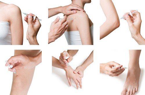 farmakopunktura_chto_eto_takoe_kogda_primenyaetsya-1.jpg