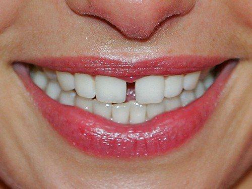 Как можно убрать щель между передними зубами?