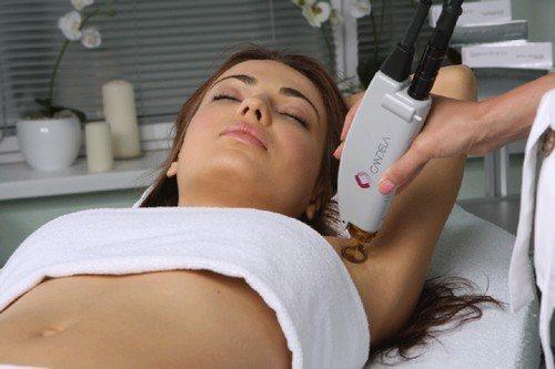 александритовый лазер для эпиляции