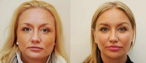 эндоскопическая подтяжка лица - быстрый способ омоложения