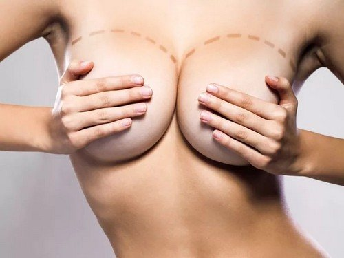 Анал с худыми и силиконовой грудью