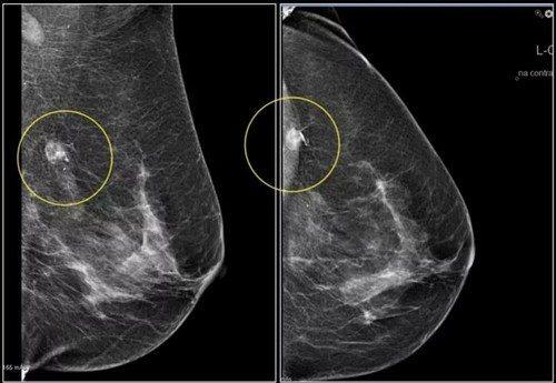 Кальцинаты в молочной железе: рассеянные и единичные микроуплотнения в груди, какое лечение