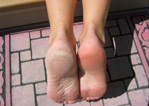 Снять огрубевшую кожу ног thumbnail
