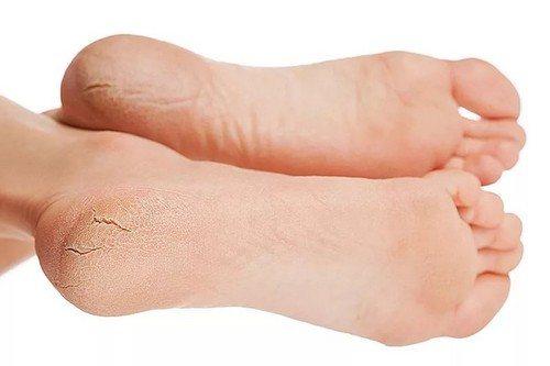 Снять огрубевшую кожу ног