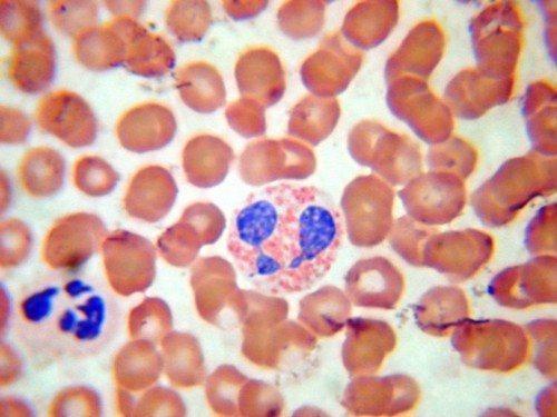Базофилы в крови норма