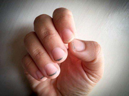 Неопрятные ногти